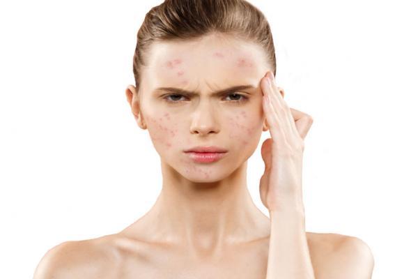 Acne Treatment Productผลิตภัณฑ์ดูแล รักษาสิว